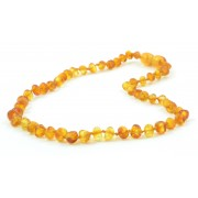 Honey Amber Baroque Teething Necklace