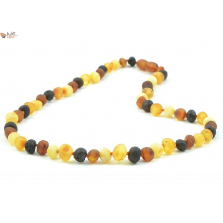 Cognac Baroque Amber Adult Necklaces