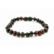 Cherry Baroque Amber Adult Bracelets