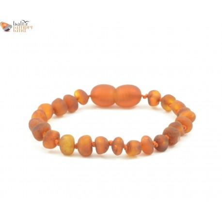 Raw Cognac Amber Teething Bracelet / Anklet